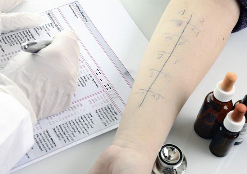 Der Prick-Test gibt Aufschluss über mögliche Allergien.